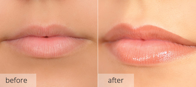 cosmetic enhancements - lips 1
