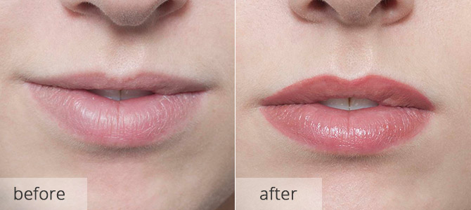cosmetic enhancements - lips 2