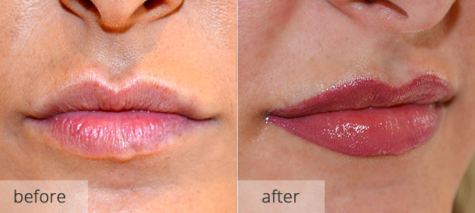 cosmetic enhancements - lips 3