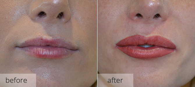 cosmetic enhancements - lips 4