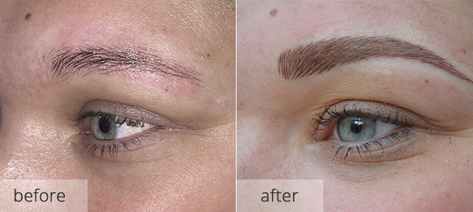 eyebrow enhancements - before & after 3