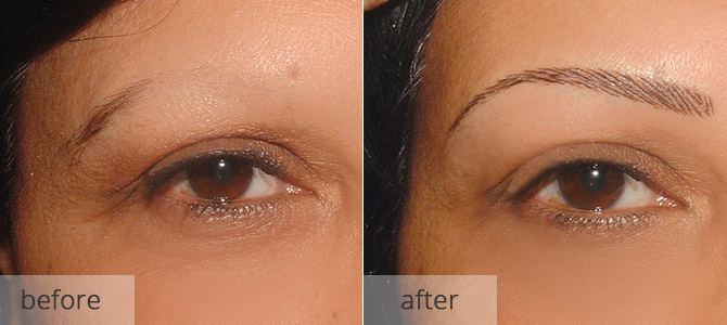 eyebrow enhancements - before and after