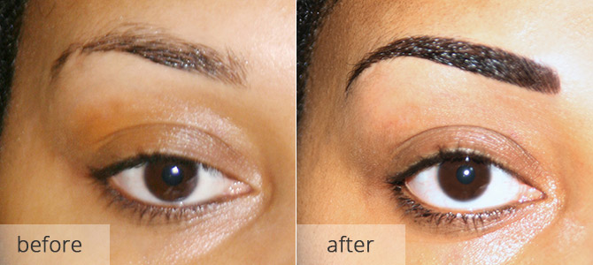 eyebrow enhancements - before & after 2