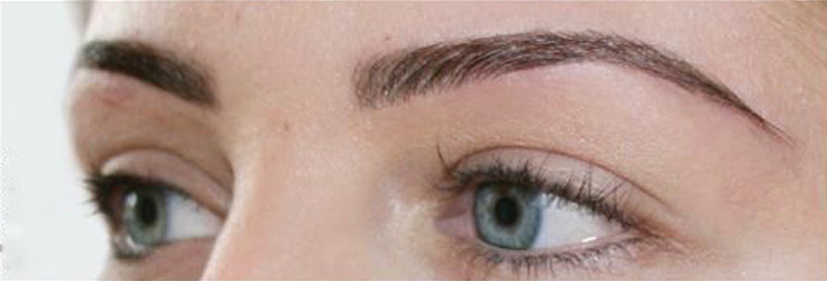 Highly Defined Brows treatment - after